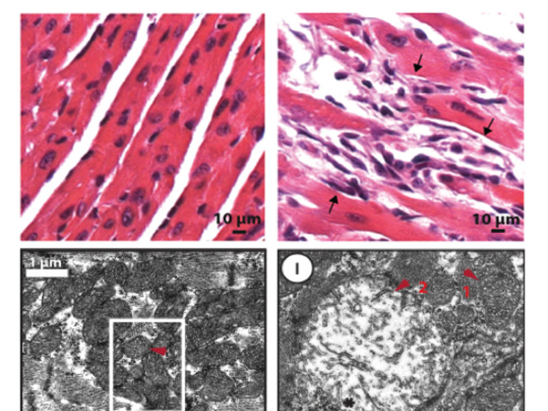 <p><strong>Figure 3</strong> Electron microscopy images of cardiac muscle (cardiomyocytes) tissue from normal and <em>Mof </em>deleted mice are shown. The upper panels show the tissue structure. The lower panels give a more detailed view of the mitochondria. Red arrow 1 indicate a normal mitochondria. Red arrow 2 indicate a degenerated and dysfunctional mitochondria.</p>