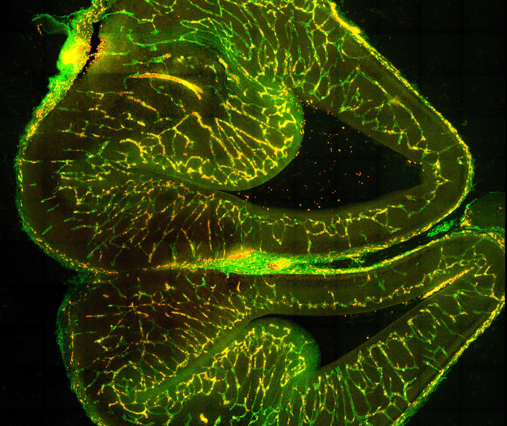 Slice of an embryonic mouse brain showing the development of vascular endothelial cells (green) and mural cells (red). The latter can contract and thus influence the blood flow in the vessels.